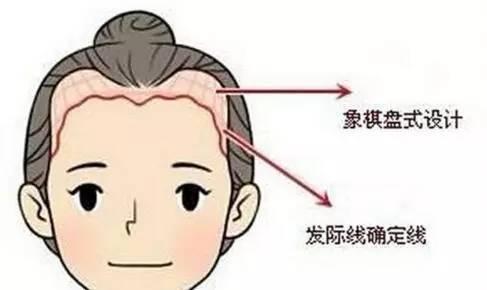 上海冰点脱毛的医院哪家好
