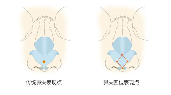 上海哪家医院激光祛痘效果比较好