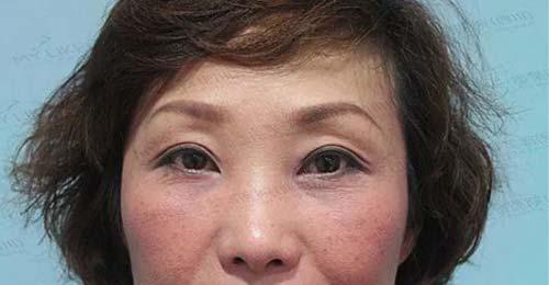 双眼皮手术失败,应该怎么办啊