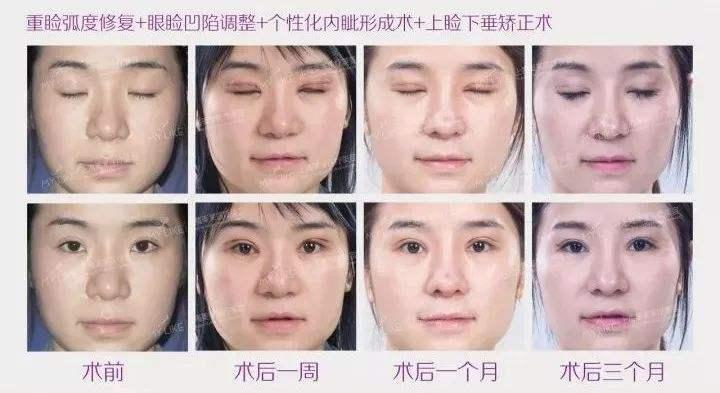 做清洁护肤可以收缩毛孔吗