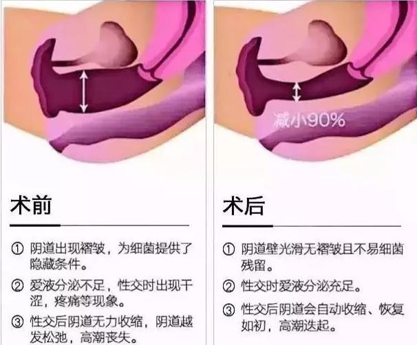 上海美莱韩式半较久定妆效果不好