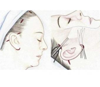 怎么才能彻底去除脸上的斑点