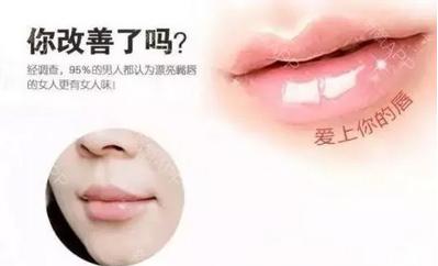 上海激光除皱一般多少钱