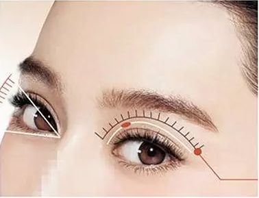上海做开眼角手术需要多少钱