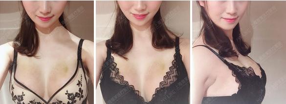 上海隆鼻整形要多少钱