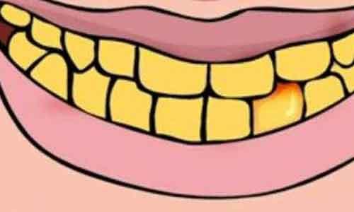 美莱口腔科举办隐形牙齿矫正交流会