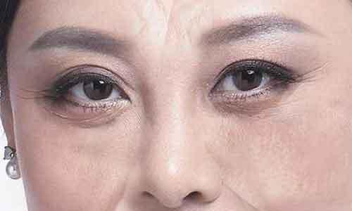 割完双眼皮术后怎么才能快速恢复自然