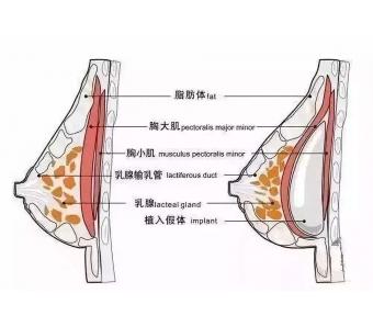 玻尿酸注射隆鼻效果能保持多久