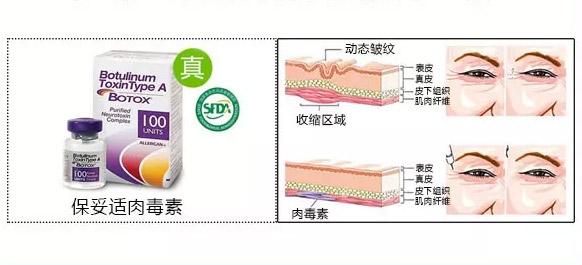 在上海做吸脂祛眼袋手术安全吗