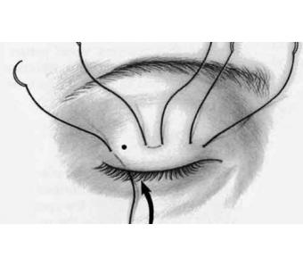 做韩式隆鼻整形手术恢复时间需要多久