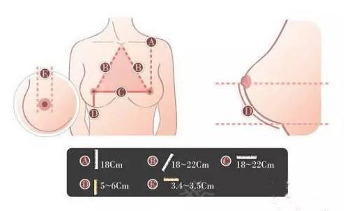 上海做假体丰胸整形手术可靠吗