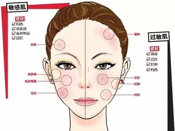 上海做激光祛痘术后会不会有副作用