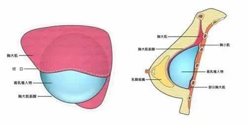 腿部吸脂术后如何护理才能恢复更快