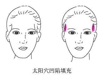 上海做激光去色斑大概多少钱