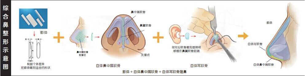 美莱祛斑新技术CNT全面上市