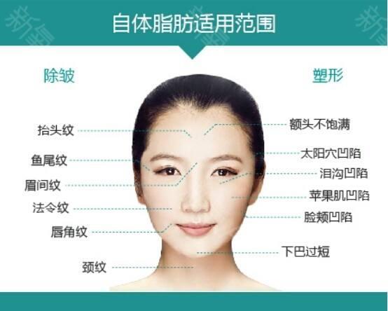 上海做假体垫下巴到底多久才能消肿呢