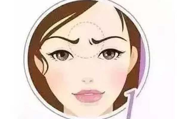 隆鼻整形术后效果能保持多长时间