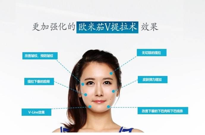 上海美莱做激光祛痘都有哪些优势