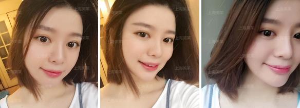 上海注射瘦脸针效果怎么样