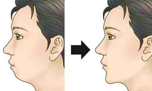 上海注射玻尿酸下巴后多久才能消肿
