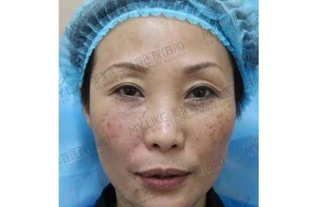 上海现在做全身激光脱毛的价格是多少