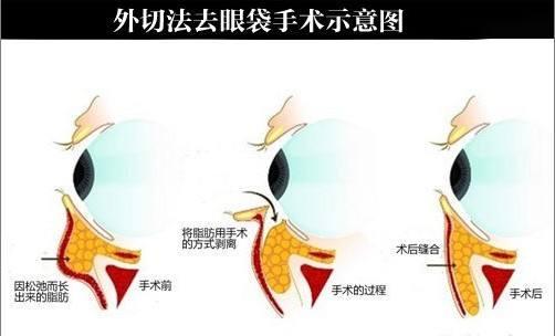 假体隆鼻多年后需要取出假体吗