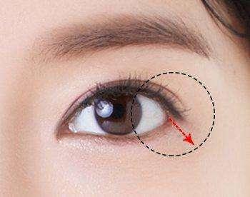 上海做假体隆鼻术后多久更换一次假体材料