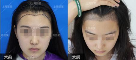 上海打水光针对脸部皮肤有损伤吗