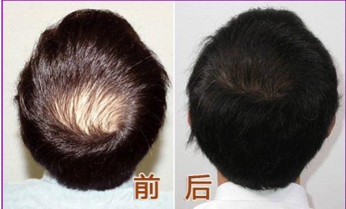 上海做半较久纹眉能保持多久时间