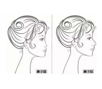 上海做鼻翼缩小手术的效果自然吗