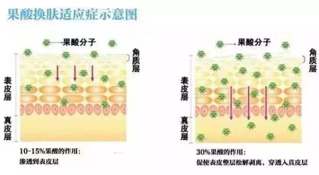 上海做吸脂减肥会不会有什么副作用