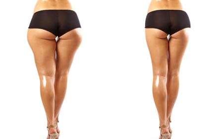 大腿吸脂后多久能运动,恢复有影响吗