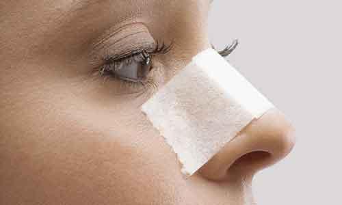 上海割双眼皮有什么危害,术后怎么护理呢