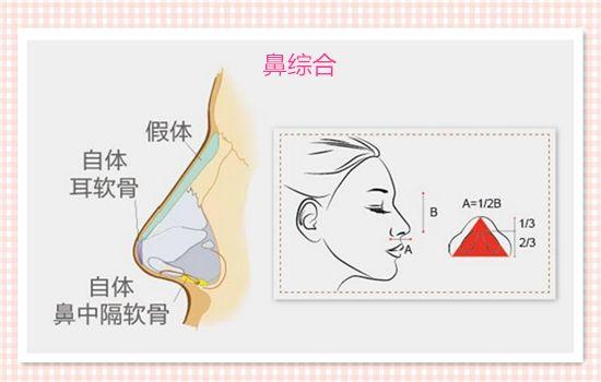 注射玻尿酸隆鼻的效果多久见效,有副作用吗
