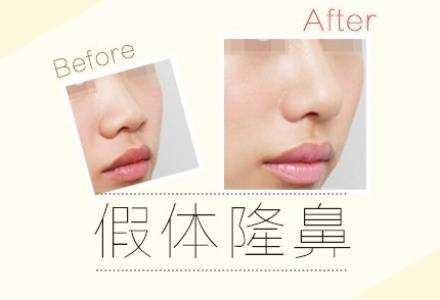 上海祛眼袋手术多久恢复自然,如何促进恢复