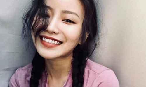 上海韩式双眼皮多久能消肿,多久会恢复自然