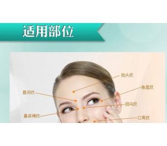 上海注射除皱效果好吗,效果可以维持多久