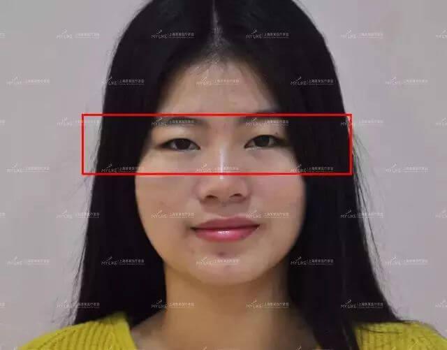 上海打完水光针为什么不能洗脸,术后如何护理