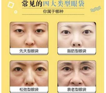 上海隆假体下巴后短期可以进行化妆吗,会有什么影响