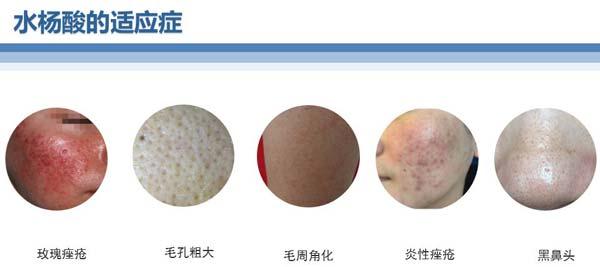 什么是激光脱毛,上海激光脱毛效果好吗