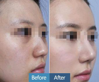 上海韩式双眼皮效果怎么样,术后需要住院吗