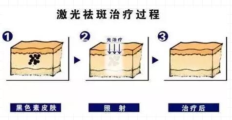 上海激光祛黄褐斑大概多少钱,激光祛斑真的好吗