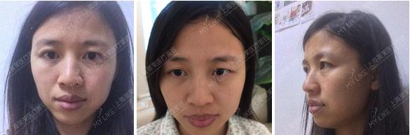 上海吸脂瘦脸有后遗症吗,多久可以洗脸呢