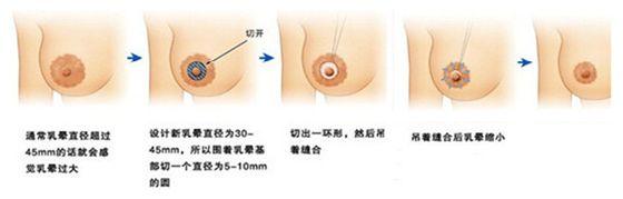 上海鼻翼缩小手术多少钱,术后效果自然吗