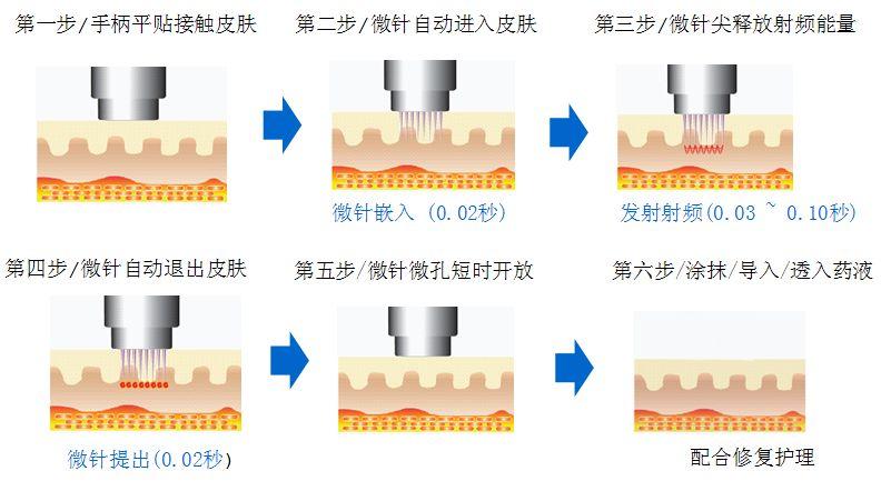 上海隆鼻注射医院哪家好,效果可以保持一年吗