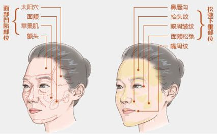 上海水光针对皮肤有害吗,一般需要打几次呢