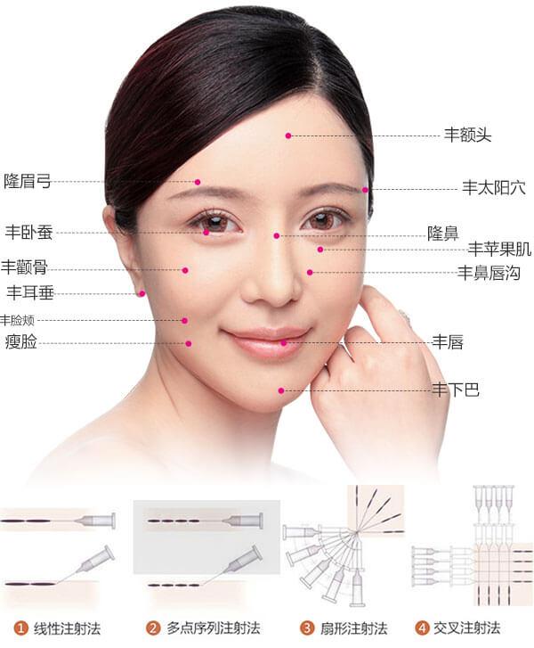 上海做内切去眼袋手术 哪家医院效果好呢