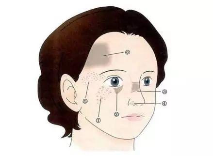 什么样的人不适合割双眼皮?