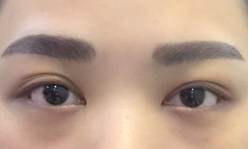 美莱祛斑医院激光祛斑对皮肤有什么危害吗