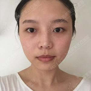 上海美莱纹眉多久可以补色?